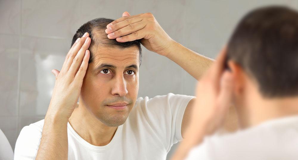 Los 3 mejores productos para la caída del cabello hombre