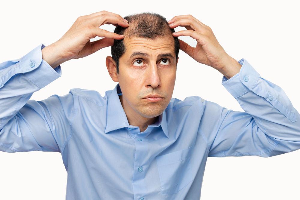 Opiniones de Alopexy 20 y 50 mg para la caída del pelo, ¿funciona?